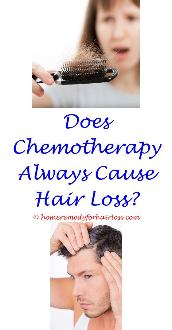 14 best Hair Loss images on Pinterest | Hair regrowth, Living ...