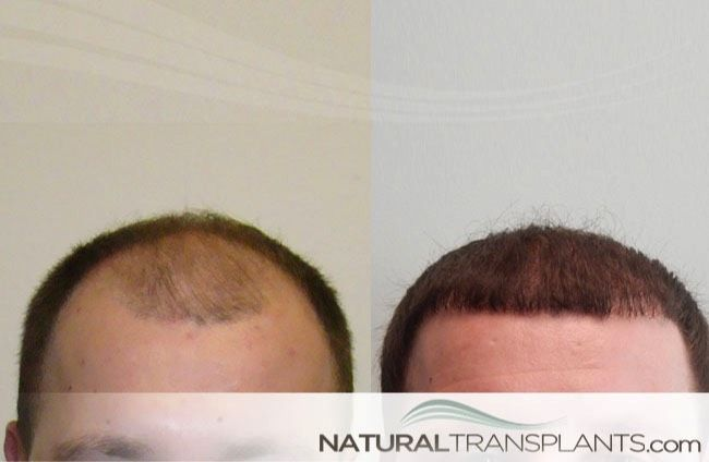 Full Hair Transplant Surgery