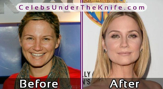 Country Singer Jennifer Nettles Plastic Surgery Celebsundertheknife
