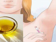Jak odstranit kožní výrůstky bez nutnosti návštěvy lékaře? Zde je 7 jednoduchých způsobů jak na to