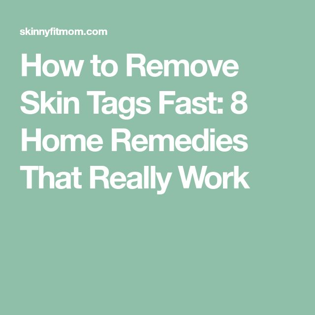 How to Remove Skin Tags Fast: 8 Home Remedies That Really Work