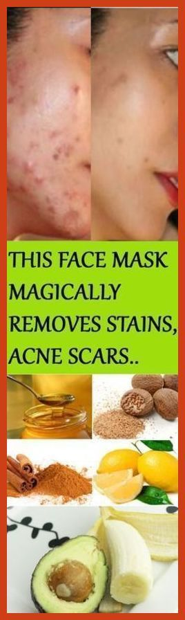 Acne Scar Removal - Acne Scar Removal and Zenmed Scar Kit *** Want to know more, click on the image. #HowToCoverAcneScars #AcneScarsTreatment
