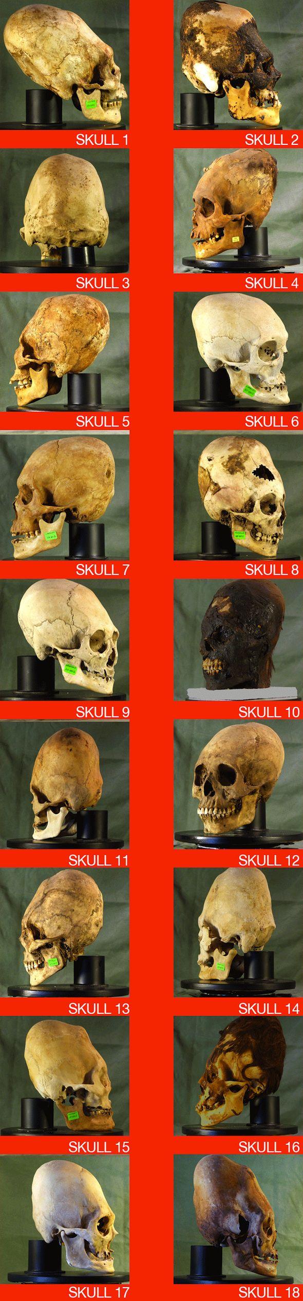 18 Elongated Skulls of Paracas Peru [VIDEO]   Raising Miro on the Road of Life - Travel Podcast
