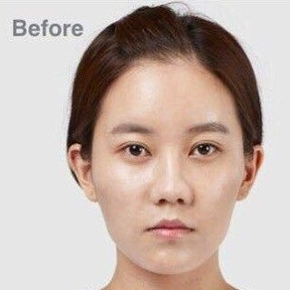 """[Before] TL Trinity(facial contouring, eyes, nose)��������. . ��June Promotions�� . 1️⃣��Triple Vline�� Long curved Jaw reduction & chin surgery combined with """"MBC"""" . ✔️M (masseter muscle reduction) ✔️B (bone reduction) ✔️C (cortical osteotomy) . 2️⃣��Secret Facial Contouring�� Zygoma reduction & mini vline (chin reduction) with dissolvable screws : . Airport check ����xray ����mri���� Hubbies and boyfriends will never know���� . 3️⃣��Shading Rhinoplasty�� Perfect solution for """"WATCH"""" . ✔️W…"""