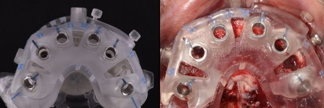 Analog and CAD/CAM Surgical Guides for Full Arch Prosthesis - Spear Education