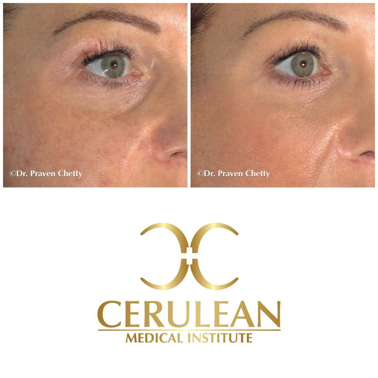 Tear trough filler before and after photos illustrating filling and softening of under eye hollowness for a rejuvenated appearance✨ #TearTrough #UnderEye #Eyes #Filler #BeforeAndAfter #Healthy #Skin #FlawlessSkin #Cosmetic #Dermatology #CeruleanMedicalInstitute #DrPravenChetty #RealSelf #TopDoctor #Kelowna #Okanagan