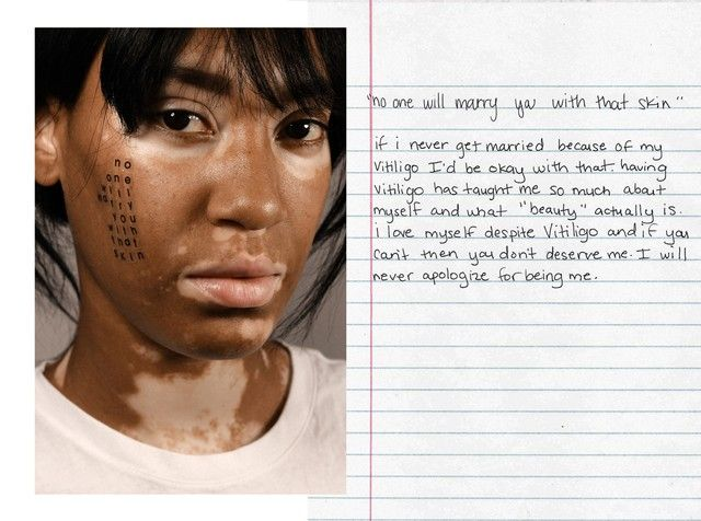 The Photographer Shining A Spotlight On People With Skin Conditions In 2020 Skin Conditions Vitiligo Skin