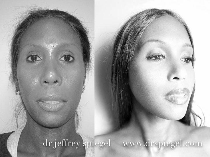 Facial Feminization Before After Dr. Jeffrey Spiegel