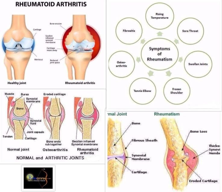 Rheumatoid Arthritis is a dangerous joint disease that is triggered by swelling in the cells that normally produce lubricating secretions for joints.Help is just a call or WhatsApp away on 9935934190