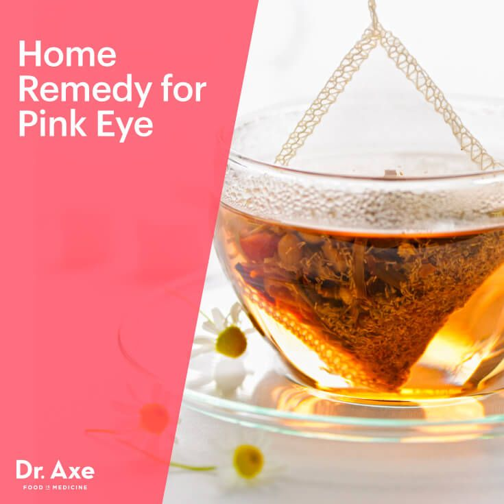 Home remedy for pink eye - Dr. Axe http://www.draxe.com #health #holistic #natural