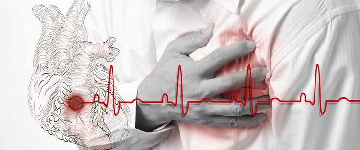 Emergency First Aid during Heart Attack, You Must Know This
