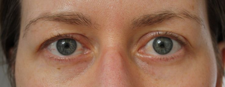 Proof that the eyelid exercise actually does work to lift/tighten hooded and sagging eyelids