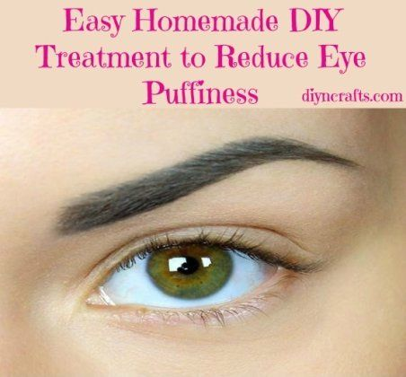 easy homemade diy treatment to reduce eye puffiness  home