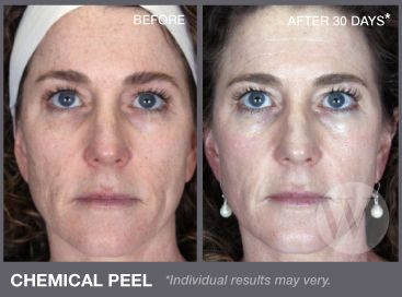 55 Best Skin Chemical Peels Images On Pinterest Chemical