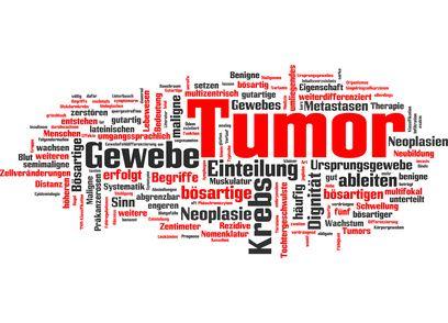 Wie sich Krebs im Körper ausbreitet. Die schnelle Bildung von Metastasen und Therapieresistenz sind charakteristisch für aggressive Tumorarten wie Bauchspeicheldrüsenkrebs und bestimmte Arten von Brustkrebs. Sie sind auch die Haupttodesursachen bei Krebserkrankungen. http://der-seniorenblog.de/medizin-gesundheit/krebserkrankungen/krebs-news/ . fotolia