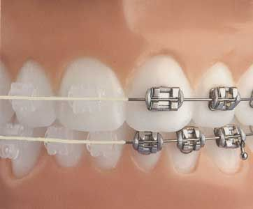 Clear ceramic braces may be a great alternative to traditional metal brackets. Ask Dr. E. if they will work for you.