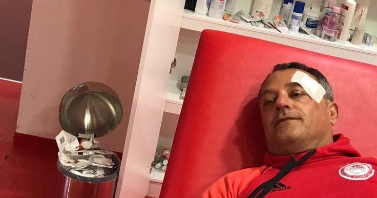 Ξύλο στα αποδυτήρια από τα ΜΑΤ- Τραυματίας ο φροντιστής του Ολυμπιακού