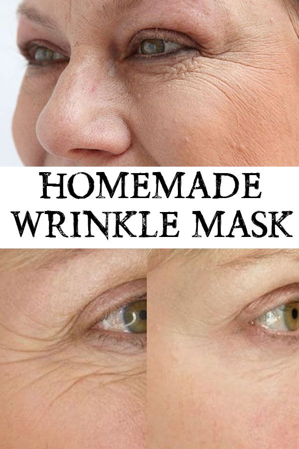 Problems with wrinkles? Studies have shown that cheese is the secret ingredient so try a homemade wrinkle mask for visible and fast results.