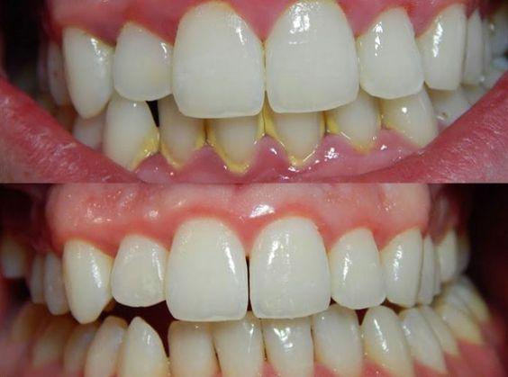 Pour des dents saines