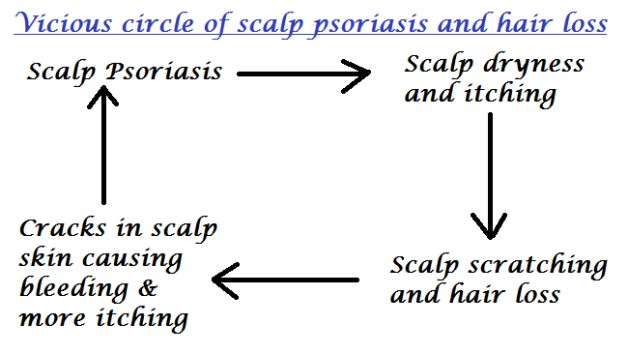17 best ideas about psoriasis scalp on pinterest. Black Bedroom Furniture Sets. Home Design Ideas