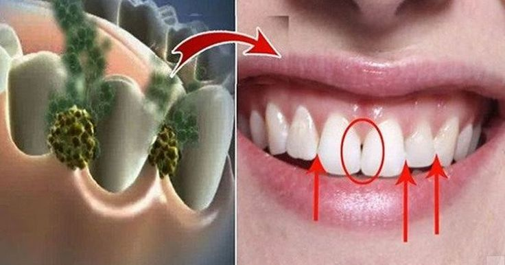 El enjuague bucal es una de las partes más importantes de todo el proceso de higiene de los dientes, ya que es él quien termina por elimi...