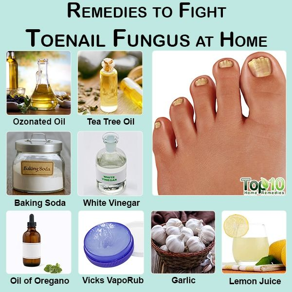 How To Get Rid Of Toenail Fungus In 2020 Toe Fungus Remedies