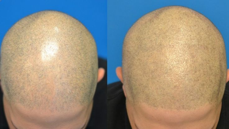 Micro Scalp Pigmentation