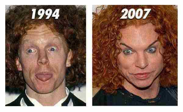 Carrot Top Plastic Surgery Like a MOnster