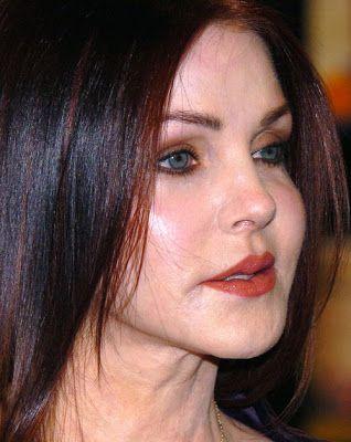 Priscilla Presley Plastic Surgery Nightmare -