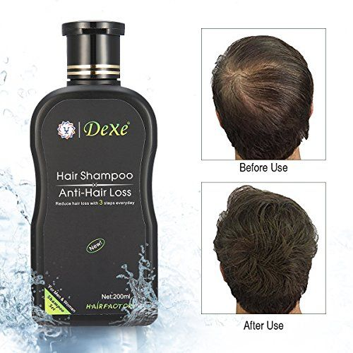 http://picxania.com/wp-content/uploads/2017/08/luckyfine-anti-hair-loss-hair-shampoo-for-both-men-and-women-hair-regrowth-treatment-hair-loss-care-products-200ml.jpg - http://picxania.com/luckyfine-anti-hair-loss-hair-shampoo-for-both-men-and-women-hair-regrowth-treatment-hair-loss-care-products-200ml/ - LuckyFine Anti-hair Loss Hair Shampoo for Both Men and Women Hair Regrowth Treatment Hair Loss Care Products 200ml - Price: Product Details: Type: Cream Volume: 200ml Su