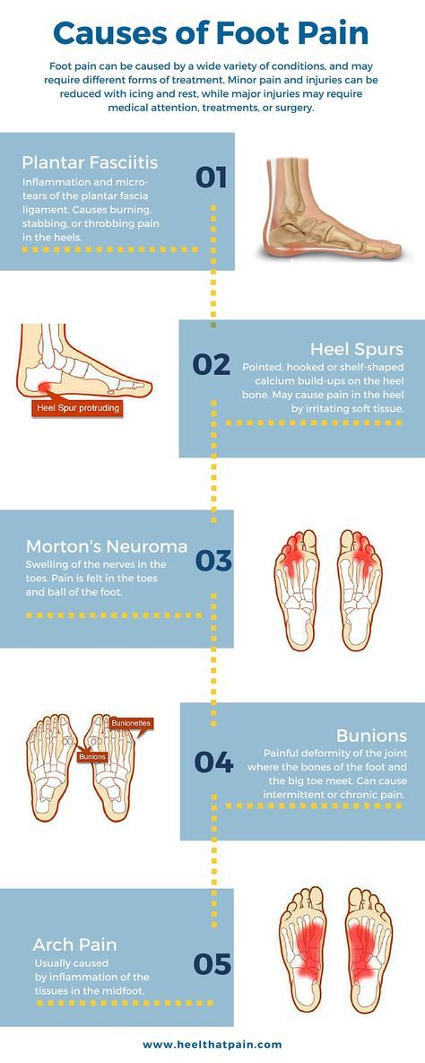 Foot pain chart: Do you know what's causing your foot pain? It may be one of a number of conditions: plantar fasciitis, heel spurs, bunions. Click to learn more about foot pain conditions.