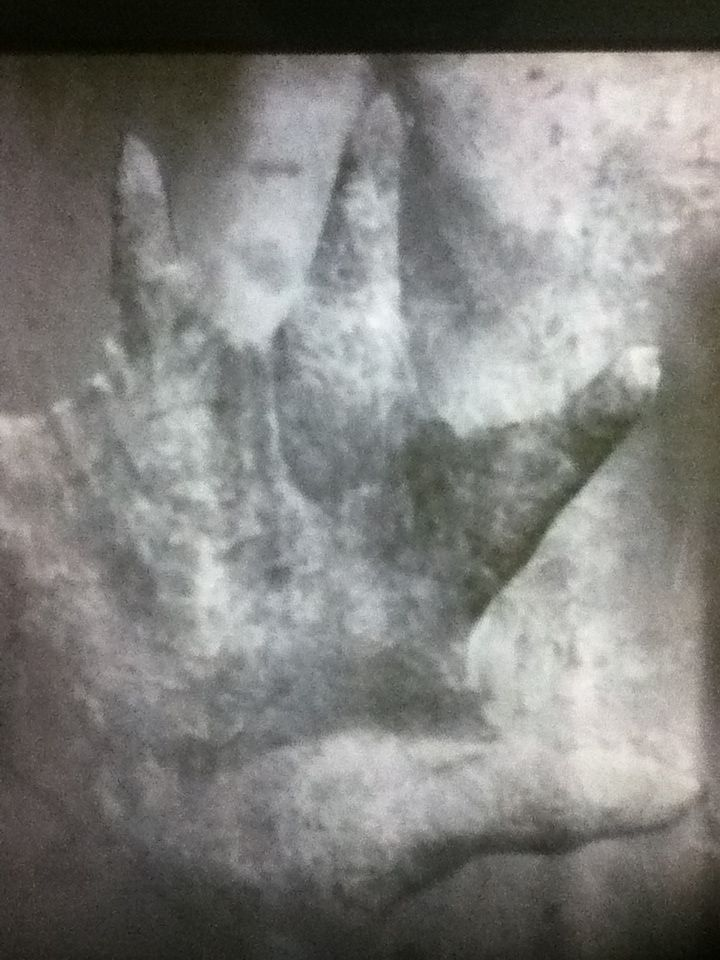 """Actual recovered photo of P.T. Barnum's """"The Real Mermaid"""" before the evidence was destroyed by a fire that took place before the public appearance. This is the only known photo to exist. These are the hands."""
