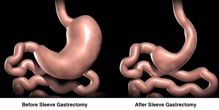 How Does Vertical Sleeve Gastrectomy Surgery Work?: Vertical sleeve gastrectomy, also known as gastric sleeve, is a restrictive procedure. Restriction is accomplished by stapling vertically and removing 80% or more of the stomach. As in gastric band, there is not intestinal bypass that would reduce the absorption of food.