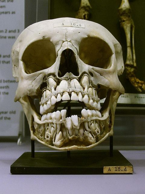 Child's skull with baby teeth and adult teeth.: