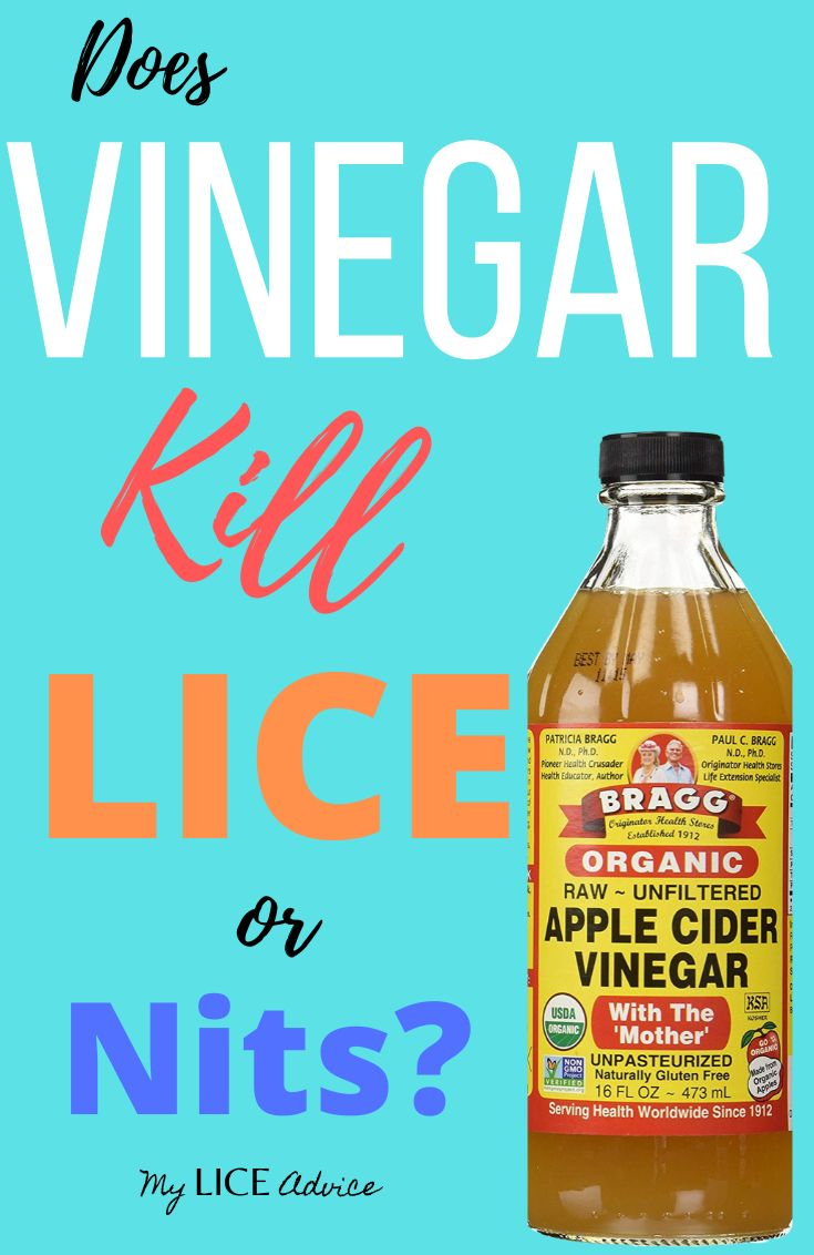 Does Apple Cider Vinegar Kill Lice: Is Vinegar A Good Way To Treat Head Lice? Discover If