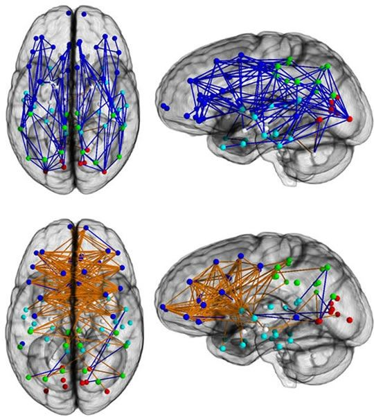 The Difference Between Men's and Women's Brains - Male brains (top) show greater connectivity front-to-back, while female brains (bottom) are more connected across the hemispheres.