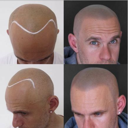 Grebeshi Before / After SMP hair loss treatment  scalp micro pigmentation withwww.skullsmpclinic.com #scalpmicropigmentation  #hairloss #tattoo #shaved #menshairstyles #hairloss #solution www.skalp.com