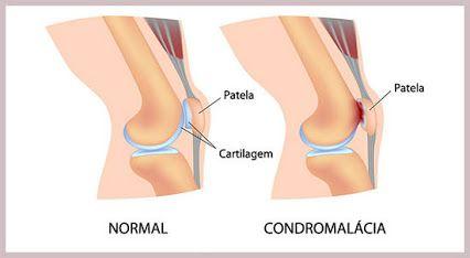 Condromalácia patelar é um desgaste na cartilagem do joelho, numa região chamada condilo femoral, que acaba ocasionando dor e inflamação no local. Ela é mais comum em mulheres e é dividida basicamente em quatro níveis, de acordo com a gravidade...
