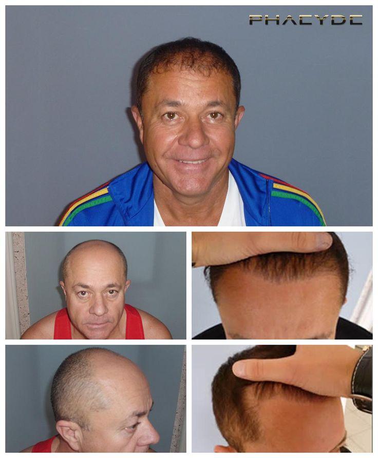 Zoltan hatte einen großen und schweren Haarausfall Zone auf der Oberseite seines Kopfes. Unsere Aufgabe war es, füllen Sie es, auf der besten Weise möglich, mit den natürlichen Haaransatz zu schaffen. Er hatte eine 2 Tage lange Behandlung, und werden Sie ein glückliches und noch mehr selbstbewussten Mann nach 1 Jahr. Hergestellt von PHAEYDE Clinic.  http://de.phaeyde.com/haartransplantation