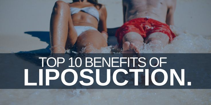 "Liposuction is the most common plastic surgery for both men and women in  the United States. However, it is commonly misunderstood. Many people  believe liposuction is a way to quickly reduce body weight or treat  obesity. Instead, liposuction aims to reshape certain areas of the body  that typically do not respond well to diet and/or exercise. Some of these  ""problem areas"" are typically thighs, buttock, arms, abdomen, and breasts."