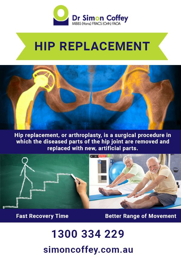 The 21 best Total Hip Replacement | Surgery | Recovery images on ...