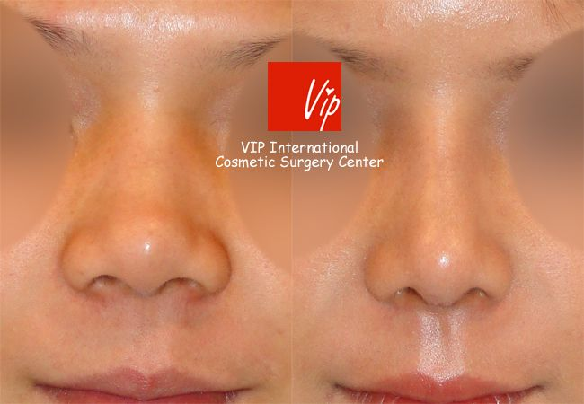 Septal cartilage rhinoplasty - Wide nasal bone reduction & Alar base reduction2