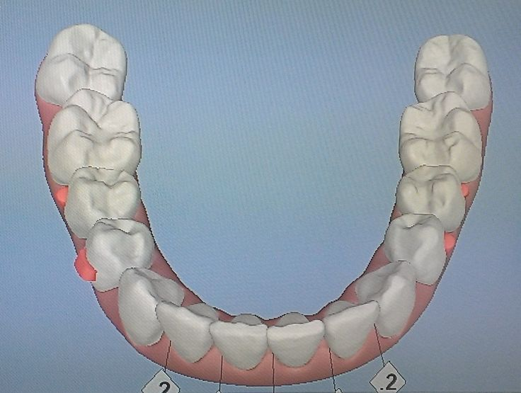 The 18 Best Teeth Anatomy Bible Images On Pinterest Dental Tooth