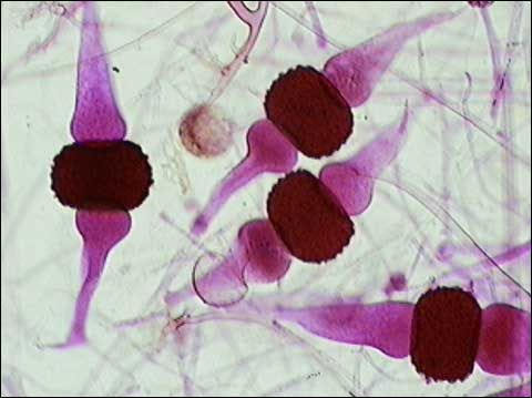DIVISION ZYGOMYCOTA Rhizopus stolonifer - zygospores ... Rhizopus Sporangia Function
