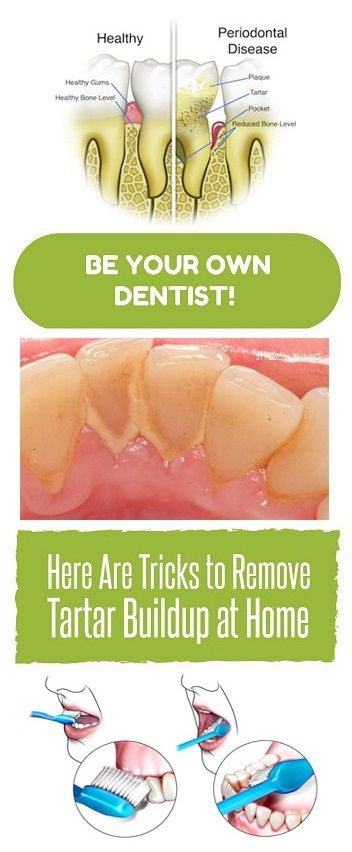 Be Your Own Dentist! Here Are Tricks to Remove Tartar Buildup at Home -