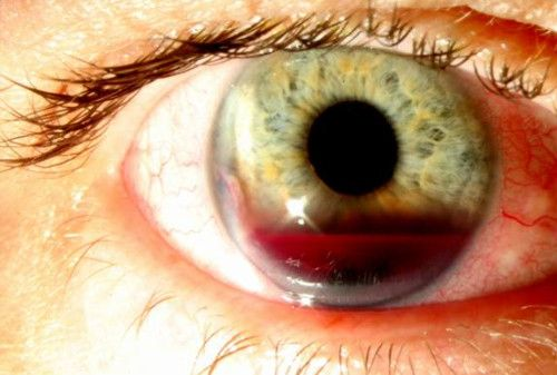 Hyphema caused by iris lesion. A hyphema is a collection of blood inside the front part of the eye. The blood may cover part or all of the i...