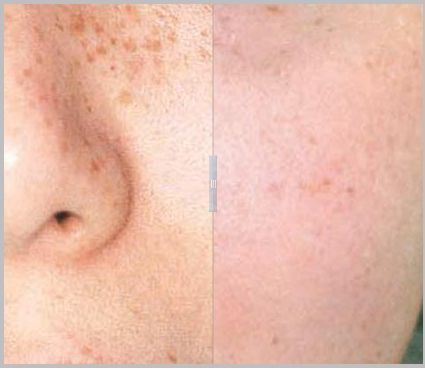 Fewer age spots and sun damage after fast, light-based skin rejuvenation treatment. #RnSpecialistCorp