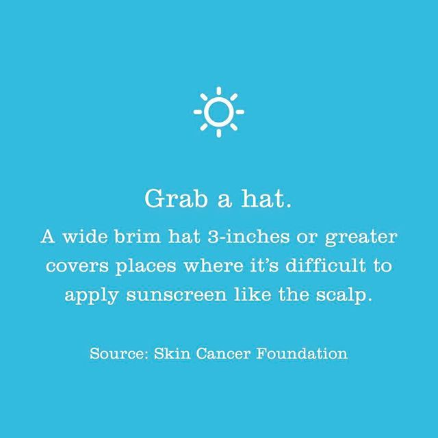 Melanoma is not just skin cancer. It can develop anywhere on the body - eyes, scalp, nails, feet, mouth, etc. Wear a hat to keep your scalp protected -- it is hard to detect skin cancer under hair.