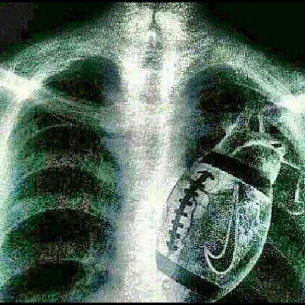 X Ray Football Tips - image 11