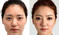 В последнее время многие люди стали обращаться к квалифицированным врачам для проведения операции по разрезу глаз. После процедуры удается избавиться от эффекта, называемого «азиатские глаза». Увеличение разреза требует оперативного вмешательства. Обычно врачи называют это блефаропластикой, которая помогает скорректировать форму век, но не имеет никакого отношения к изменению размера глазного яблока.  #операция #глаза #медицина #блефаропластика